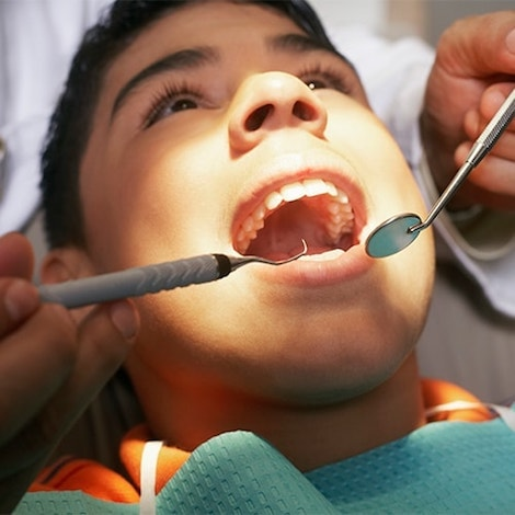 A boy with his mouth open while having a extraction as part of Franklin Dental Services