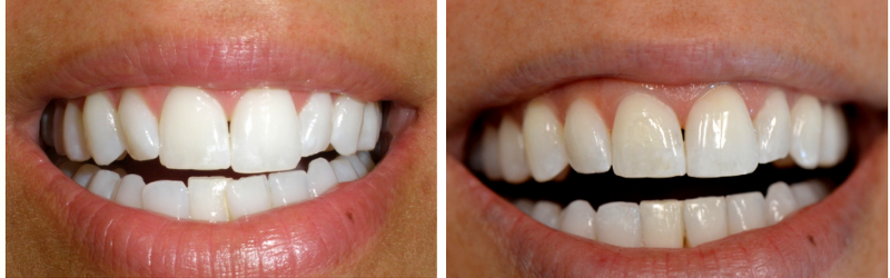 Before and after actual Invisalign case of Mint Dental.