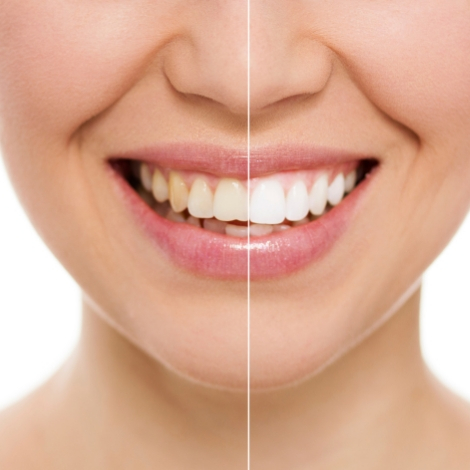 Close-up of teeth before and after teeth whitening treatment.