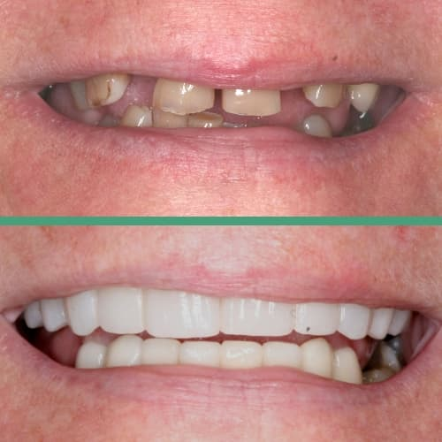A before and after cosmetic dentistry patient under the care of our Franklin dentist