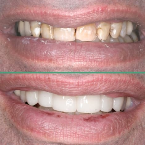 Actual cosmetic dentistry patient from Mint Dental