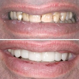 Before and after of a actual patient undergoing a smile makeover.